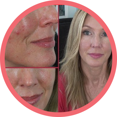 Phytopeel remove acnes e elimina manchas
