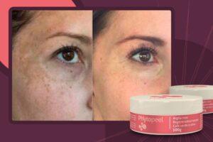 Phytopeel é creme para remover manchas no rosto